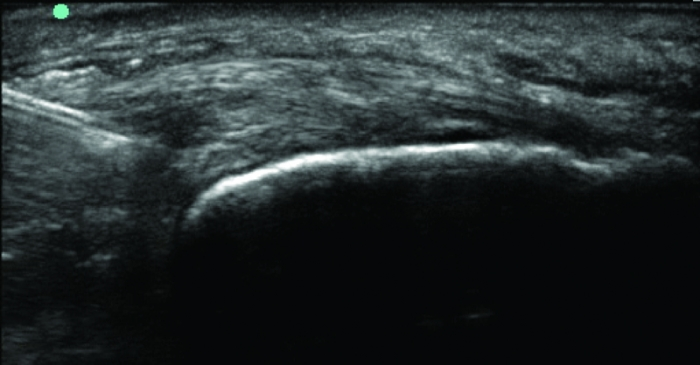 MSK ultrasound-guided myofascial trigger point injection.