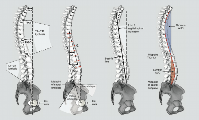 Effects of horseback riding velocity on spinal alignment