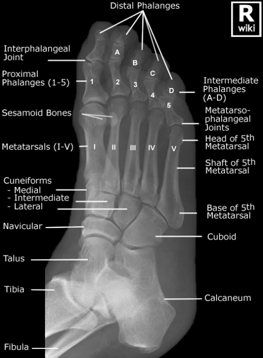 Diagnosing the lateral column foot pain in athletes