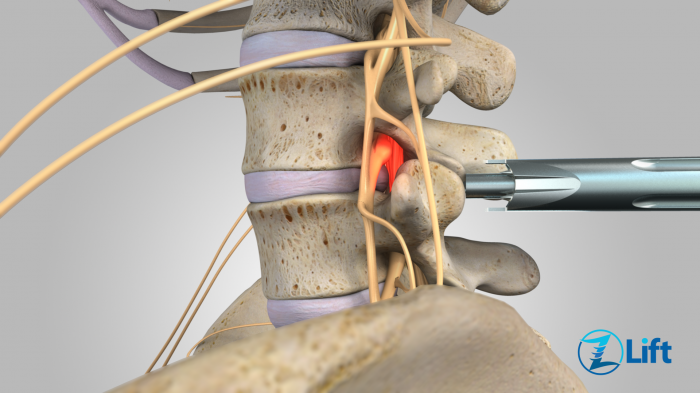 Lumbar spinal stenosis - surgery vs. conservative treatment