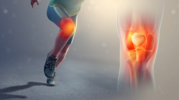 Education in runners with patellofemoral pain