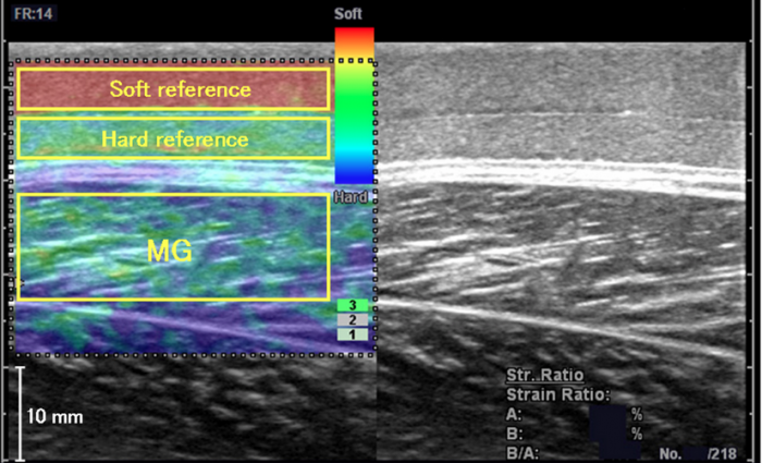 Ultrasound elastography assessment of the supraspinatus