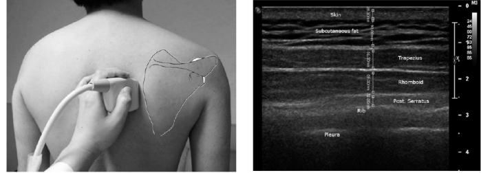 Muscle thickness of LT and SA in scapular dyskinesis