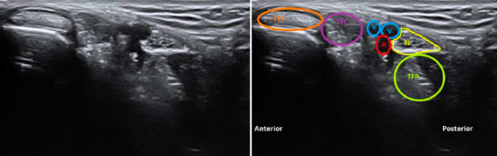 Locating tibial nerve bifurcation in tarsal tunnel syndrome