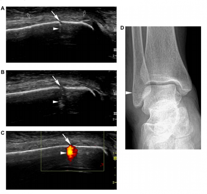 Ultrasound as an aid to detect ankle and foot fractures