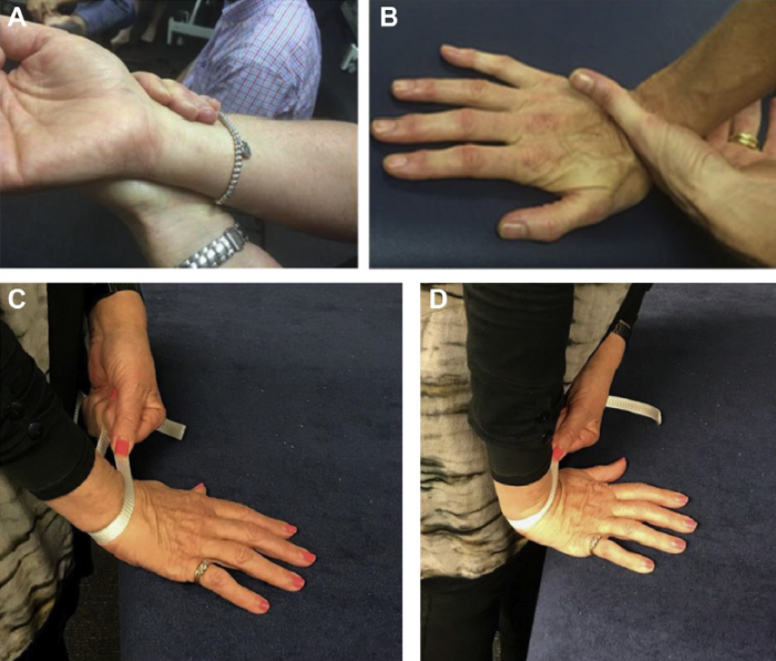 Mobilisation with movement after distal radius fracture