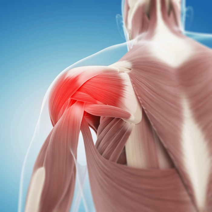 Is there a link between calcific deposits and shoulder pain?