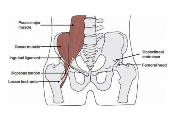 Extra-articular impingement of the hip