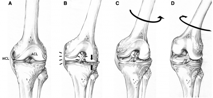 Return-to-sport status after ACL reconstruction