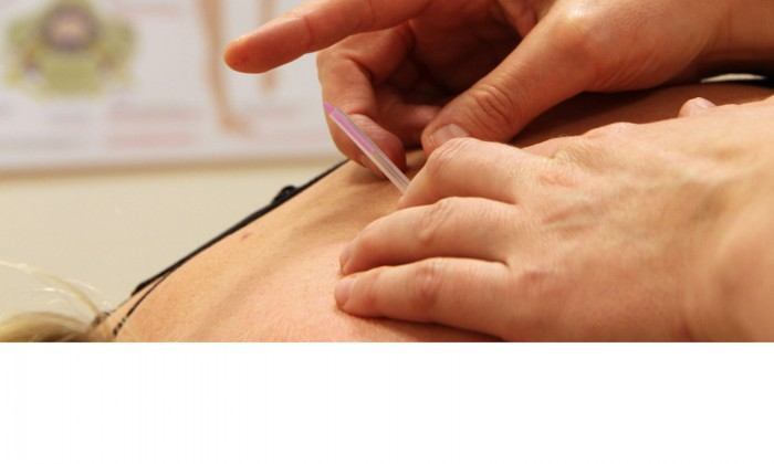 What is the benefit of dry needling for chronic neck pain?