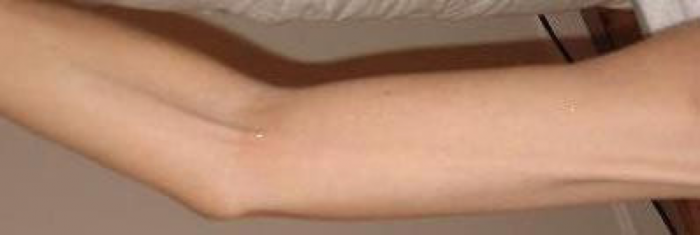 Axillary web syndrome following breast cancer surgery.