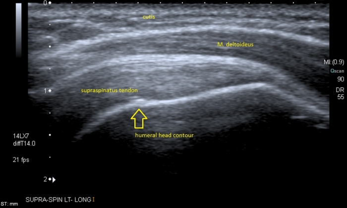 Supraspinatus muscle architecture and training mode