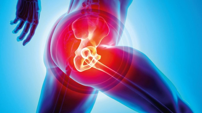 Hip replacement after sports injury