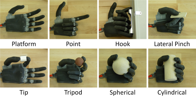 Prosthetic arms, improvement over time