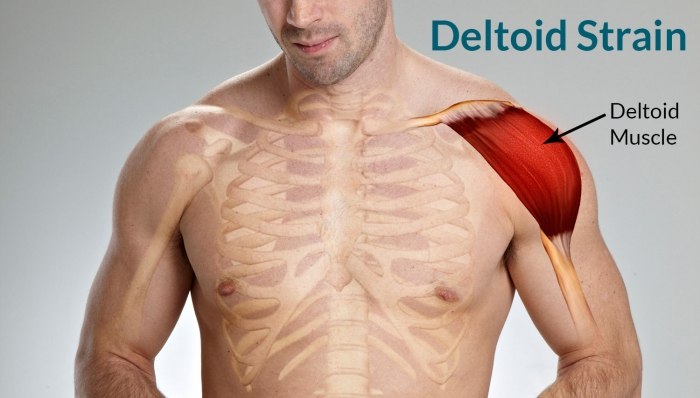 The deltoid, a forgotten muscle of the shoulder