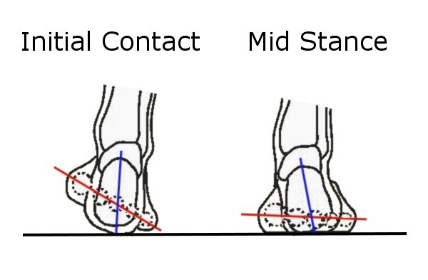 The effect of forefoot varus on hip and knee kinematics
