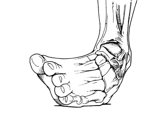 Fibular malalignment in chronic ankle instability