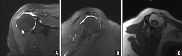 Massive rotator cuff tear pattern and loss of active ROM