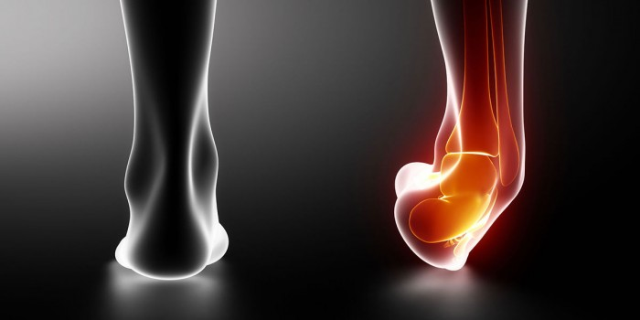 Predictors of recurrent lateral ankle sprains