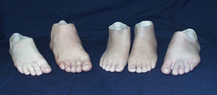 Biomechanics and patient preferences in prosthetic feet