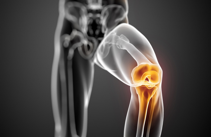 Knee OA and hip and leg strengthening exercise programs