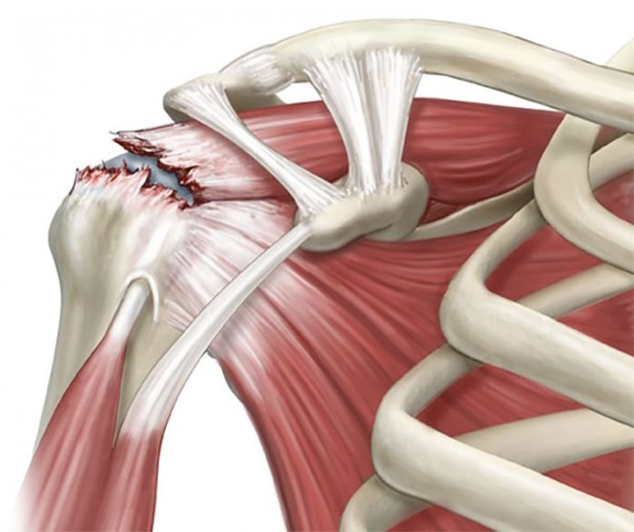 The rate of full-thickness rotator cuff tear progression.