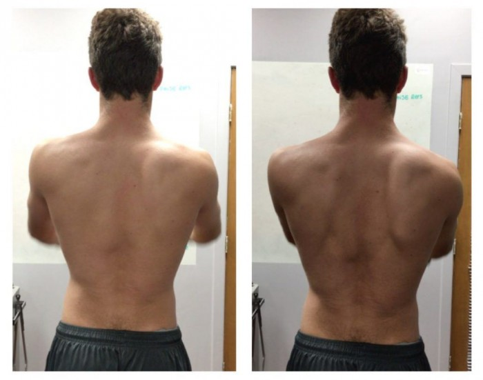 Scapulothoracic upward rotation and subacromial distance