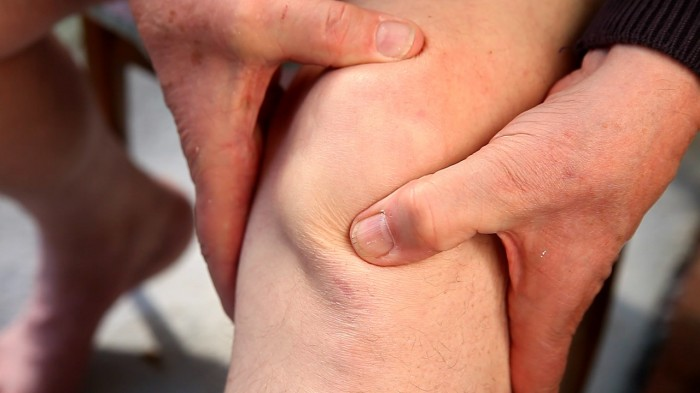 How to manage patellofemoral pain (PFP)