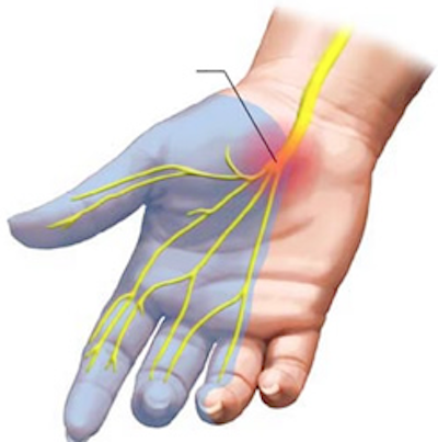 Non-surgical management of carpal tunnel syndrome