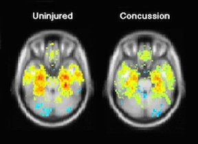 Concussion, cognitive fatigue and its treatment