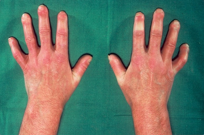 Physiotherapy interventions in Systemic Sclerosis (SSc)