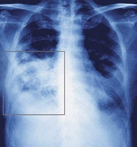 Physiotherapy to prevent ventilator-associated pneumonia