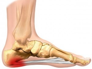 Foot and ankle mobilisations for plantar fasciitis