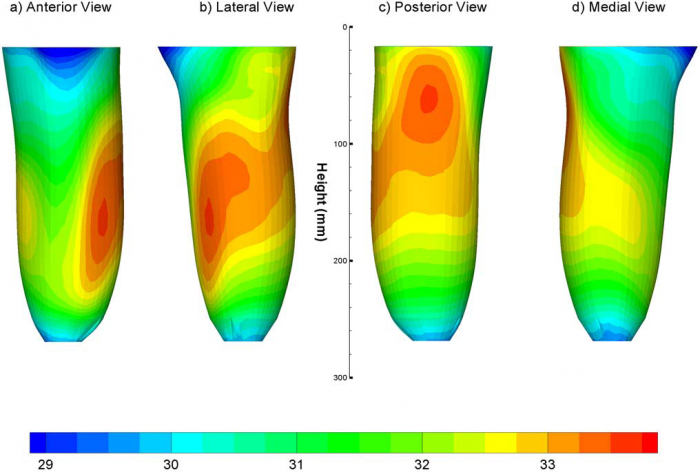 Heat and perspiration discomfort inside prostheses