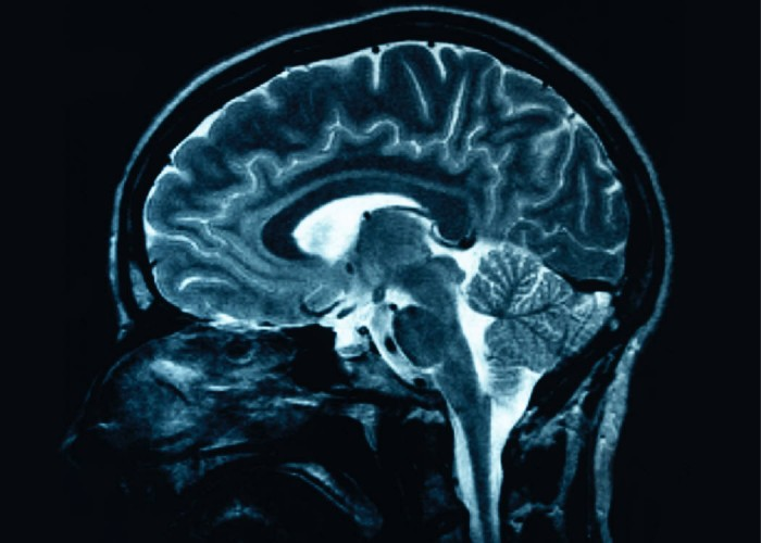 FES cycling in patients with acquired brain injury