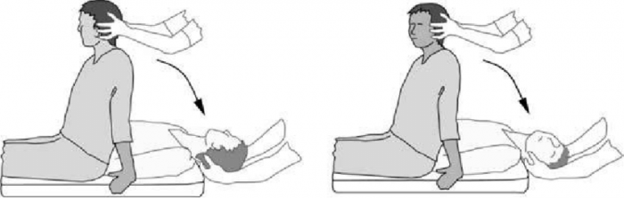 The loaded Dix-Hallpike test for BPPV