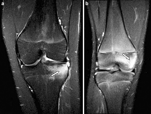 Extracorpeal Shockwave Therapy in knee pain
