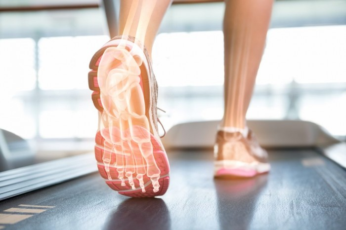 Biomechanical factors in common running injuries