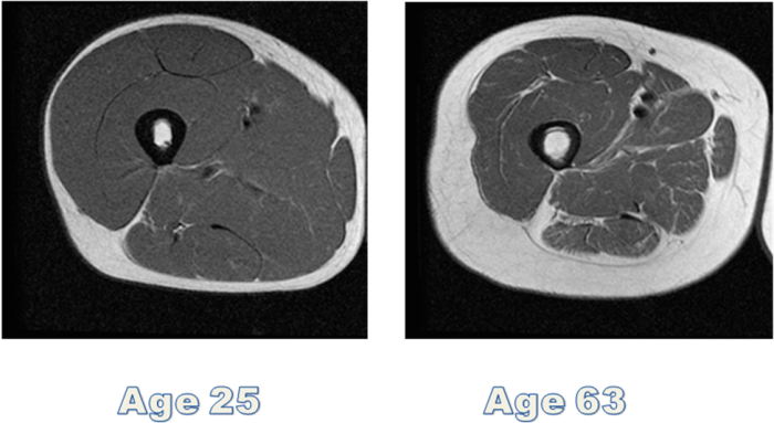 Sarcopenia and physical activity
