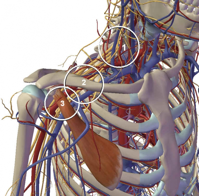 Understanding Thoracic Outlet Syndrome