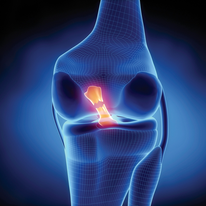 Return to sport after ACL reconstruction assessment