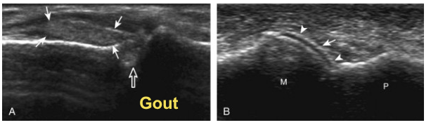Ultrasound vs. dual energy CT for accurate diagnosis of gout