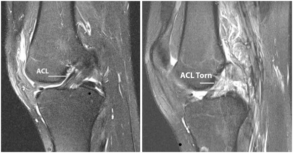 Readiness to return to ADL after ACL reconstruction