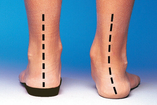 Effectiveness of foot orthoses for Achilles tendinopathy