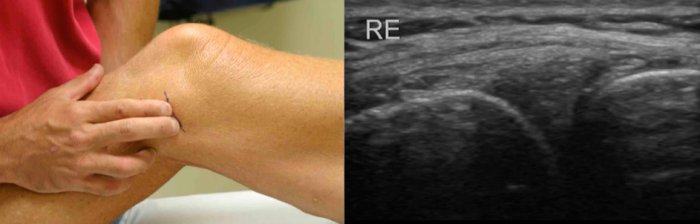 Musculoskeletal ultrasound as an aid to palpation