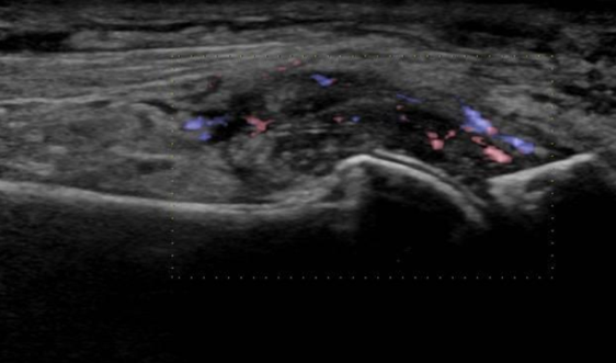 Applying ultrasound in the diagnosis of gout