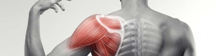 Physiotherapy for subacromial shoulder pain: review update