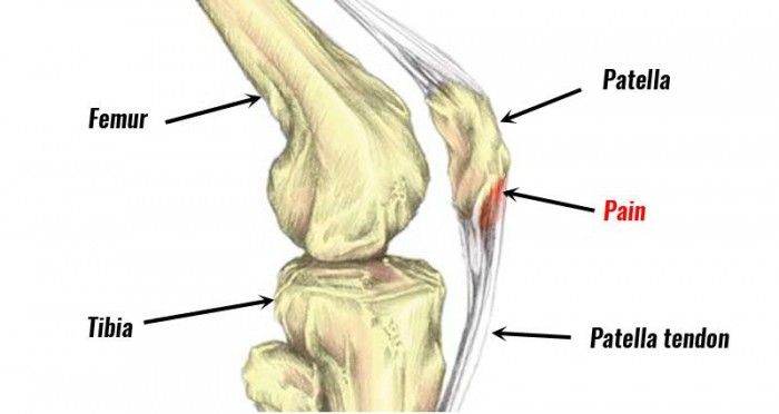 Landing biomechanics in patellar tendinopathy