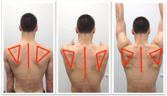 Does EMG biofeedback training improve the scapular movement?