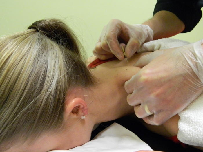 A critical evaluation of the trigger point phenomenon